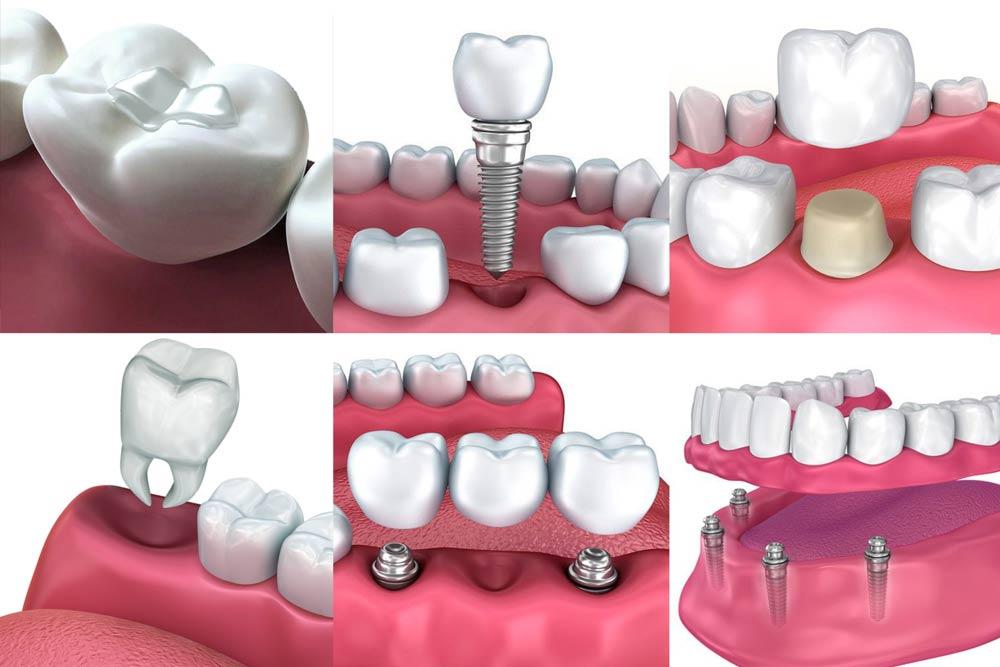 Graphics of various restorative procedures.