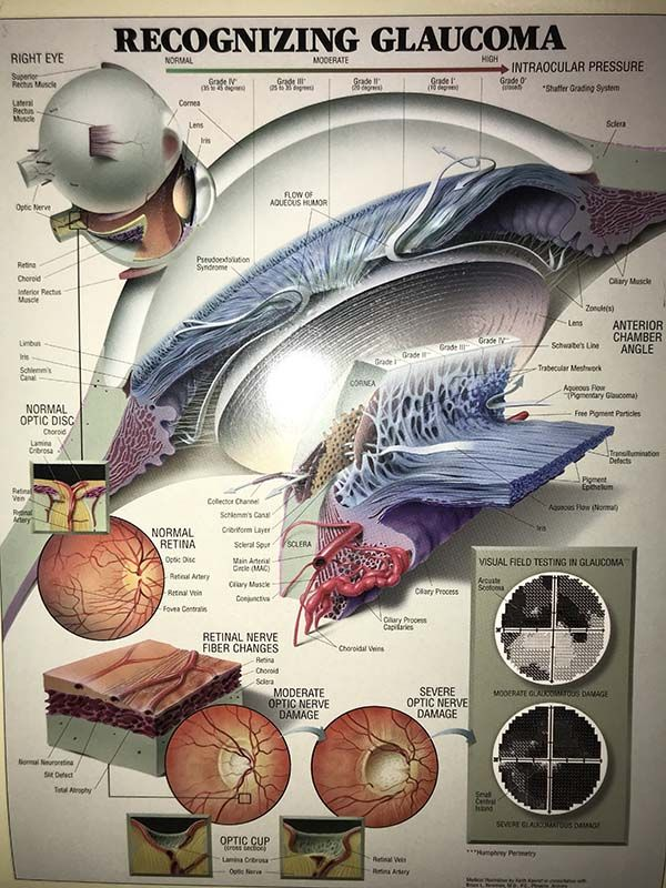 glaucoma poster