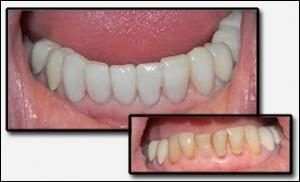 Cosmetic Tooth Bonding by Dr Paghdiwala