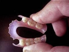 Valplast denture