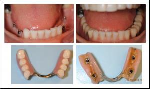 mini dental implants supported partial denture at Pearl Dental Arts