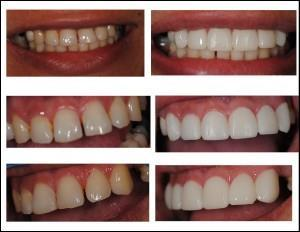 Cosmetic Teeth Bonding at Pearl Dental Arts Levittown PA and Newtown PA