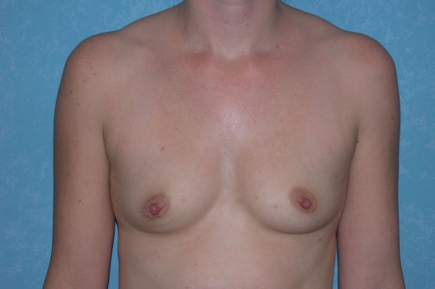 Breast augmentation, before.
