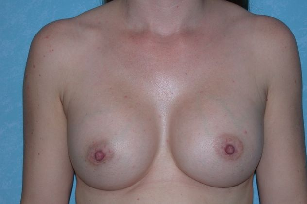 Breast augmentation, after.