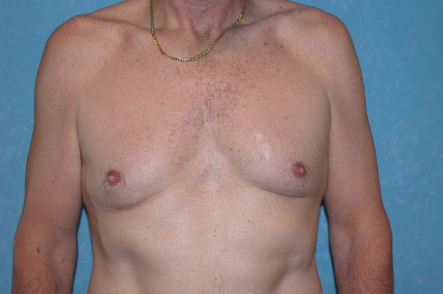 Gynecomastia, before.