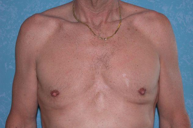 Gynecomastia, after.