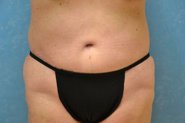 Tummy tuck, after.