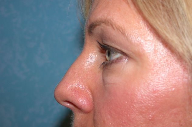 Before blepharoplasty.