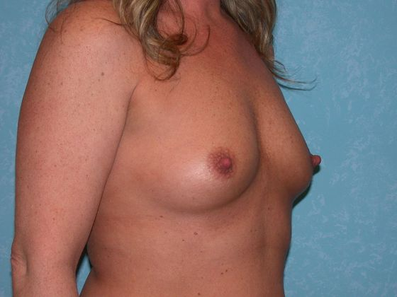 Before breast augmentation.