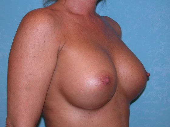 After breast augmentation.