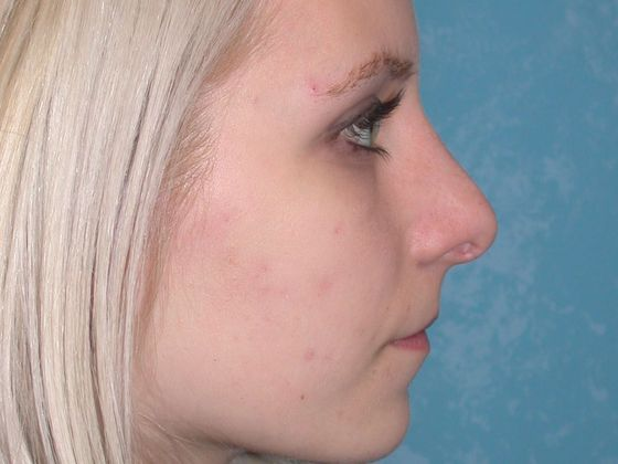 Rhinoplasty, after.