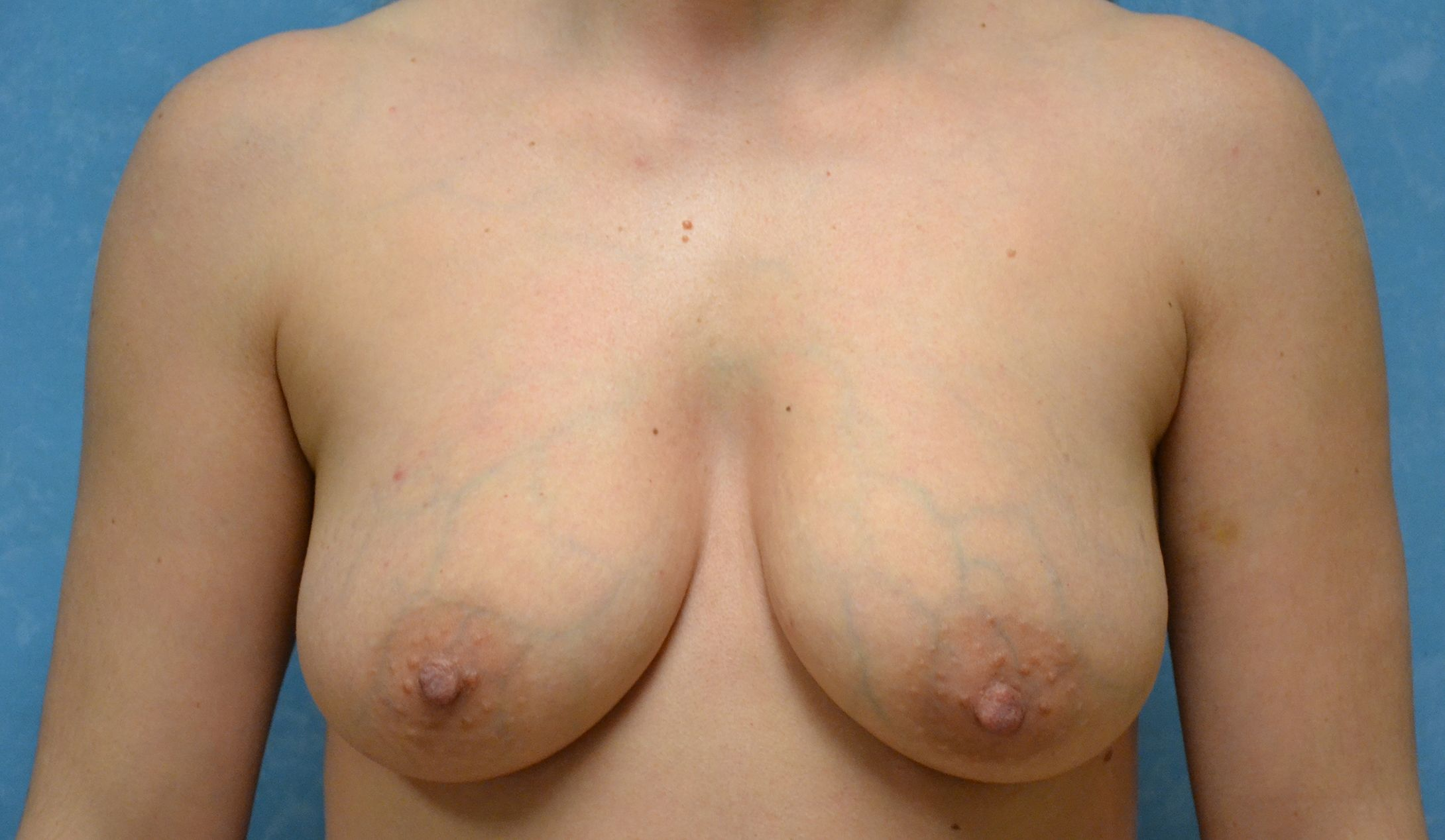 A patient before breast lift surgery.