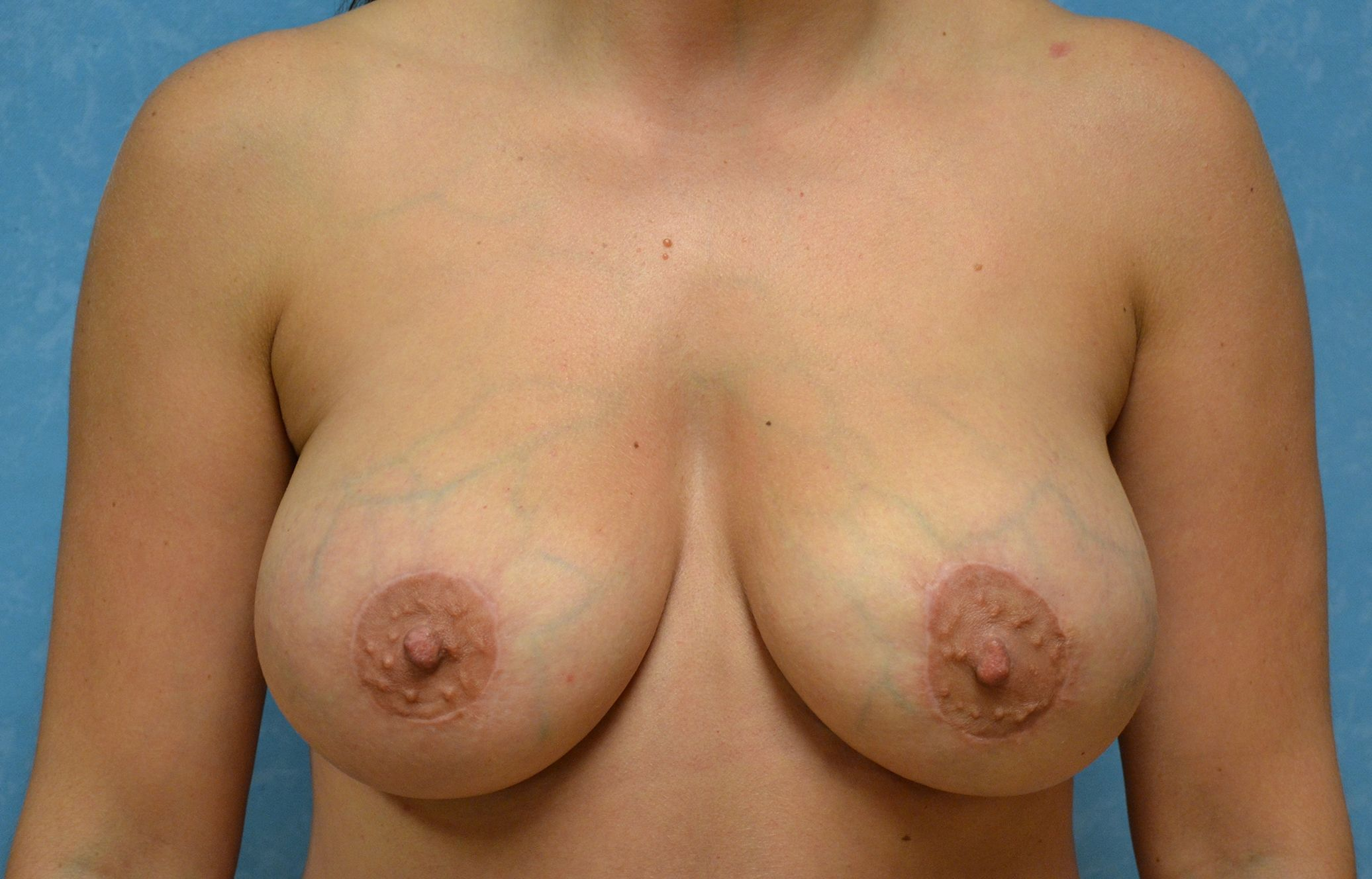 A patient after breast lift surgery.