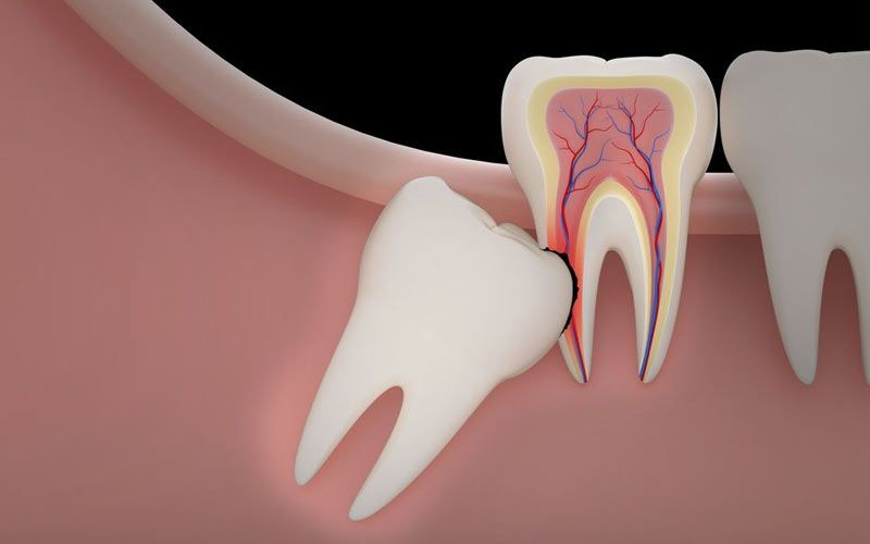 An impacted wisdom tooth is trapped beneath the gums and damages its neighbor.