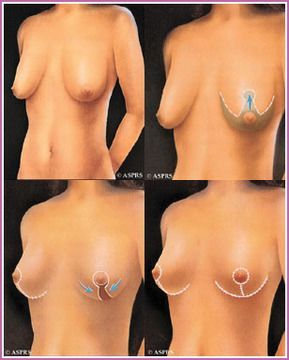 illustration of breast lift