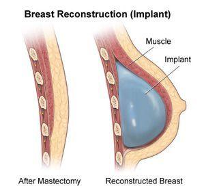 Illustration of breast reconstrucgtion