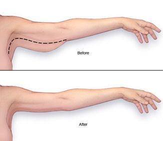illustration of arm lift results