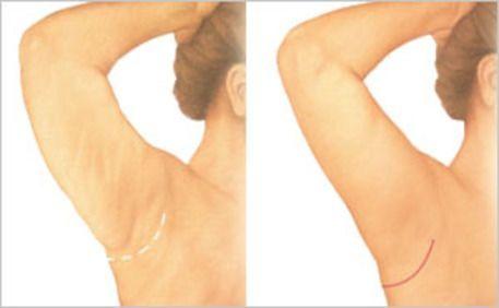 illustration of brachioplasty results
