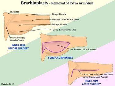 illustration or arm lift techniques