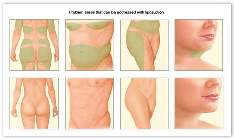 illustration of liposuction before and after