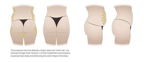 Illustration of butt lift results