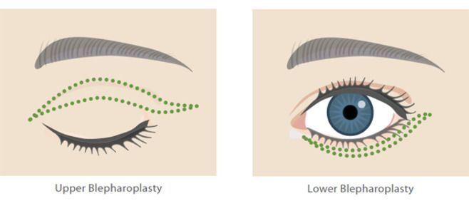 illustration of blepharoplasty techniques