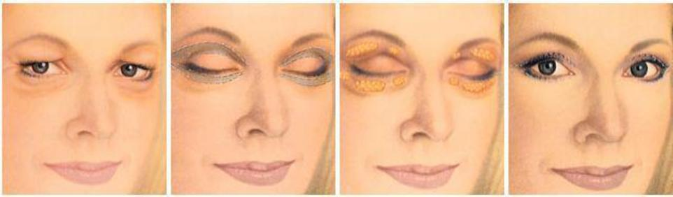 illustration of areas targeted with blepharoplasty