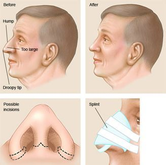 illustration of rhinoplasty procedure