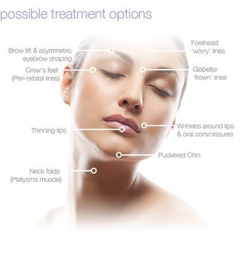 Photo highlighting BOTOX treatment options