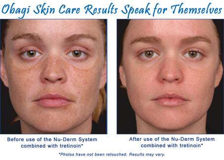 Photo of obagi skin results