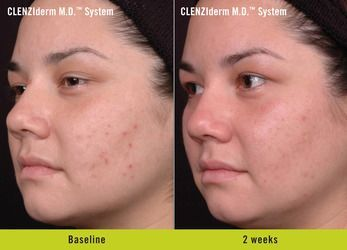 Before and after skincare results