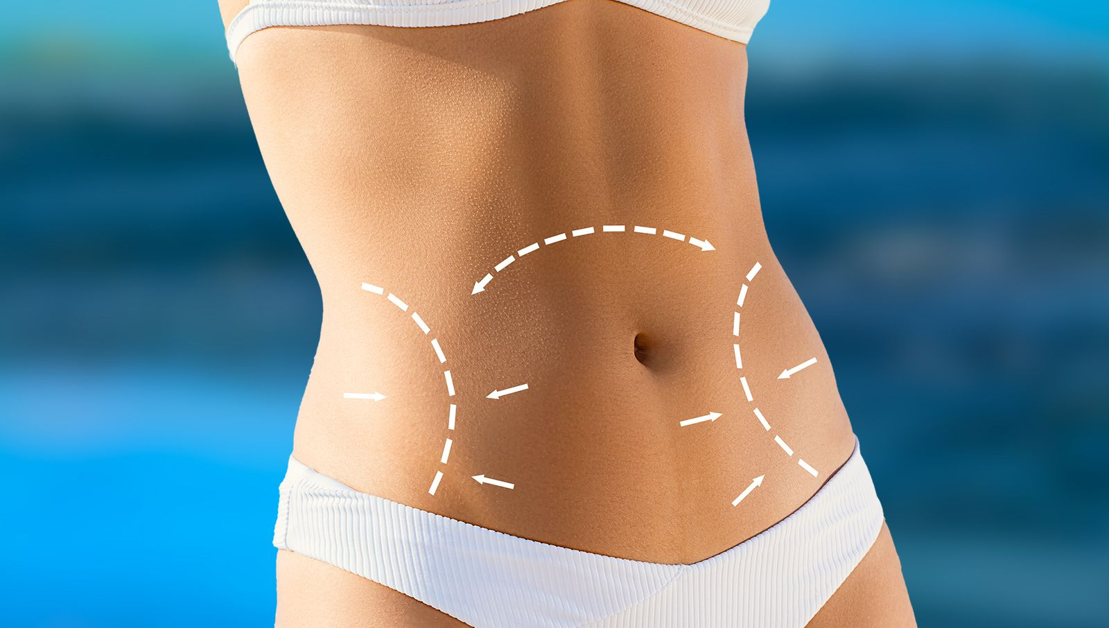 Tummy Tuck - Stamford, CT - Fairfield County, CT - Dr  Leif