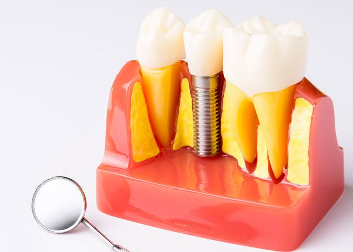 Dental exam mirror with model of jaw and dental implant