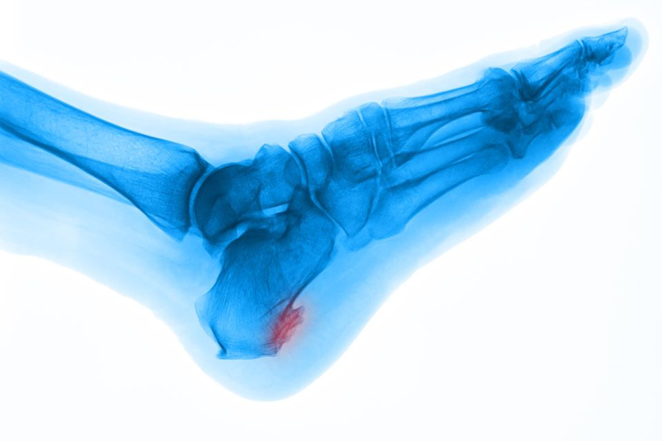 A foot with a bone spur at the heel
