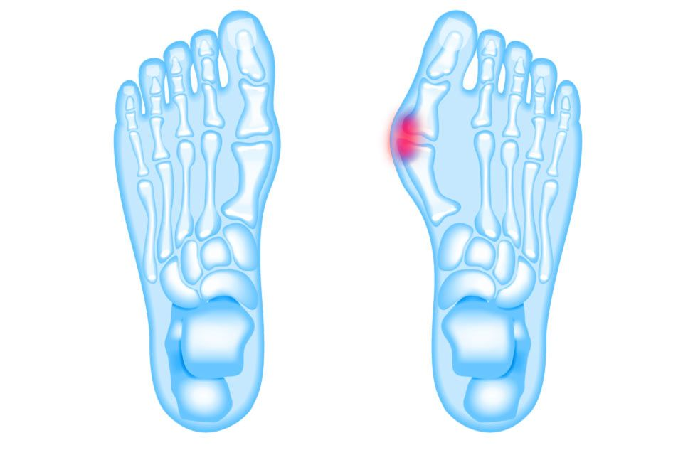 X-rays with bunions highlighted in red