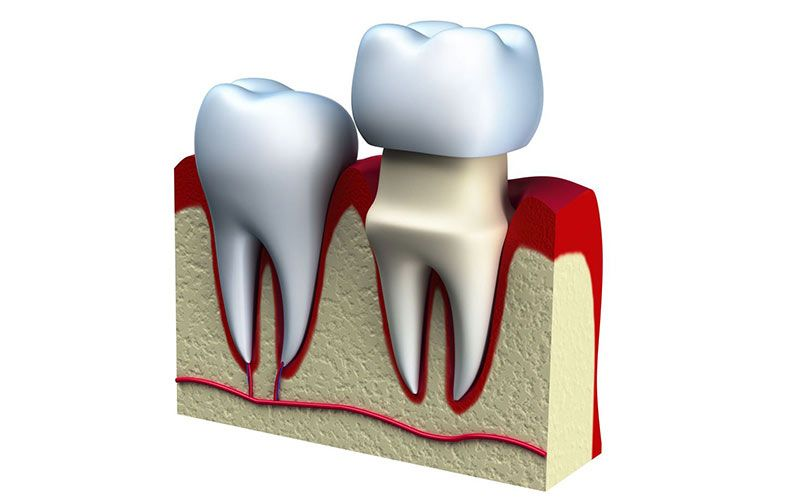 A crown is fitted on top of a reshaped tooth.