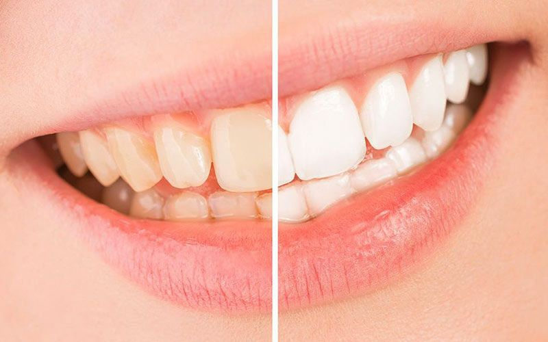 Demonstration of yellowed teeth before treatment and white teeth after treatment.