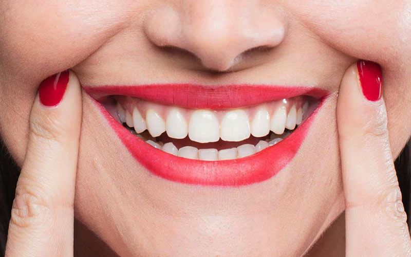 A woman pulls back her lips to show a beautiful smile.