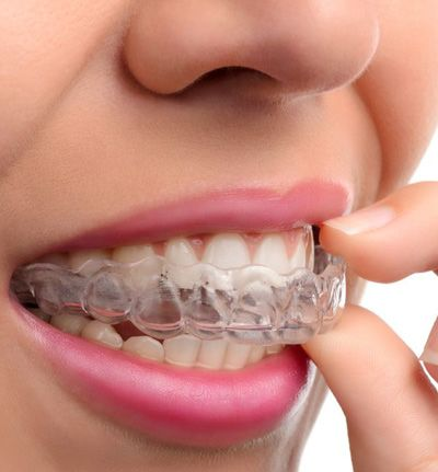 Patient removing her Invisalign® clear aligner.