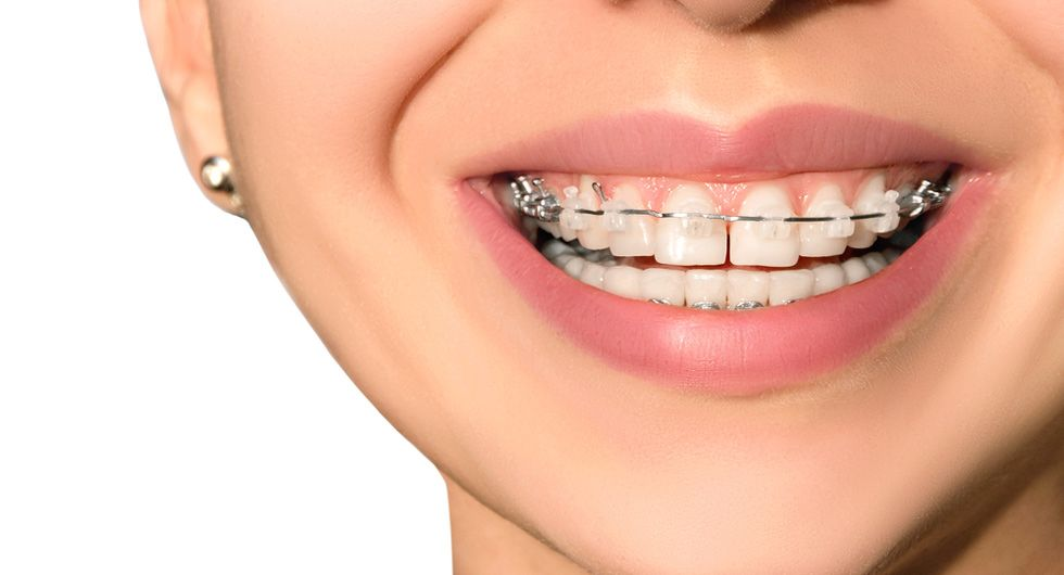 Close-up of clear braces
