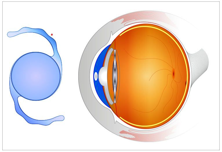 Illustration of intraocular lens and eye