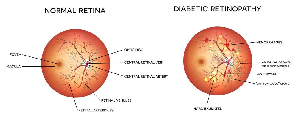 Normal retina and retina with diabetic retinopathy