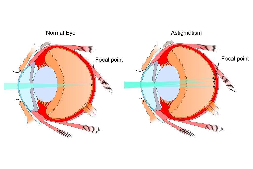 Illustration of healthy eye and eye with astigmatism