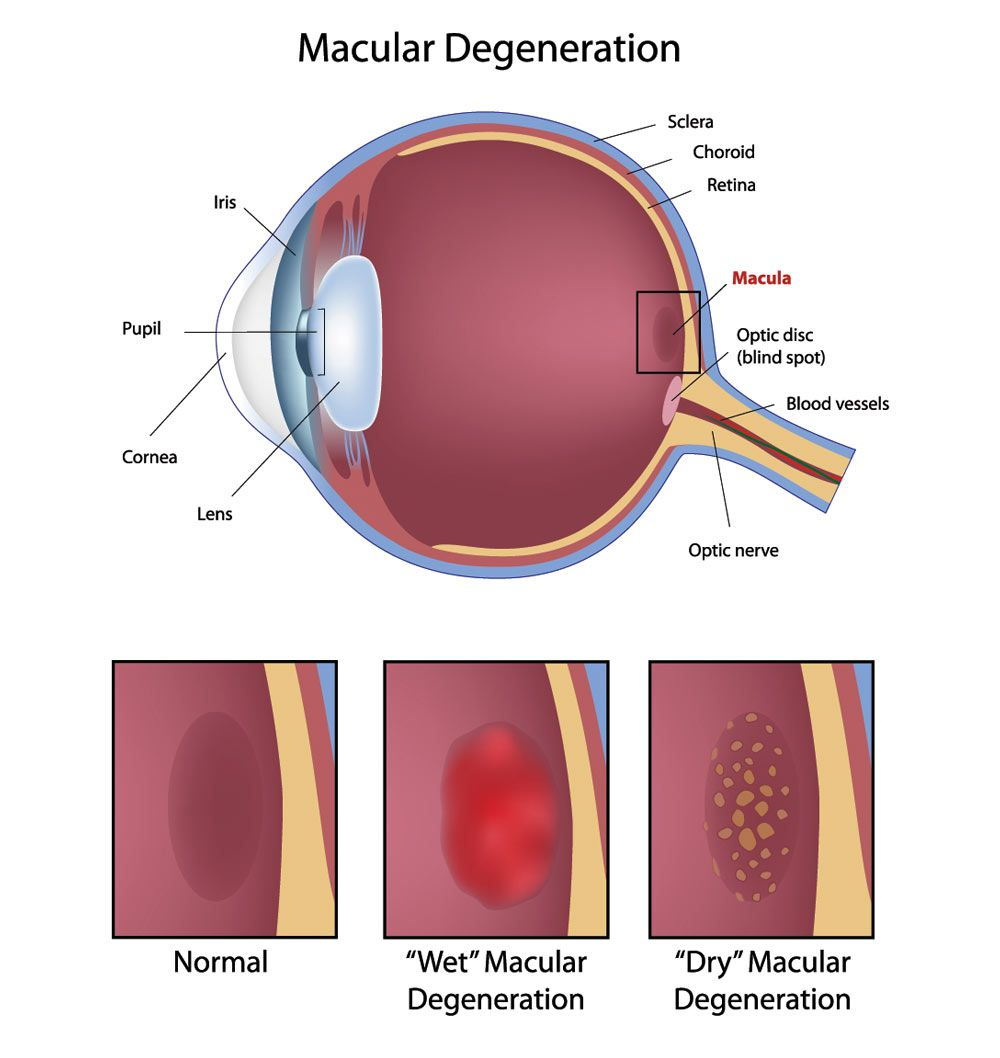 Illustration of dry and wet macular degeneration