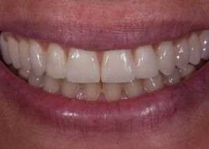 Dental implants patient.