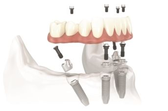 Illustration of All-on-4® dental implants.