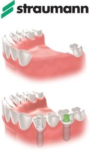 Straumann partial denture graphic.