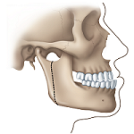 Correcting a Protruding Lower Jaw: 1