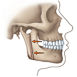 Correcting a Protruding Lower Jaw: 2