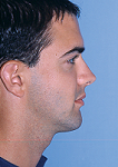 Correcting a Protruding Lower Jaw: 4